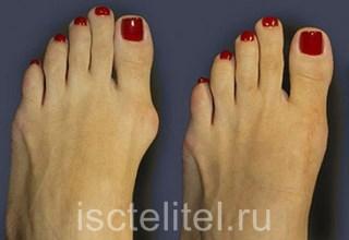Деформация косточки большого пальца ноги