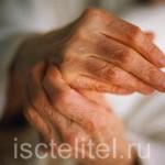 Чем лечить полиартрит?