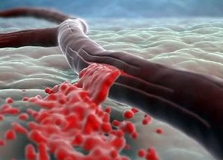 Остановить обильное кровотечение не просто