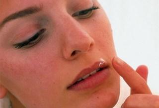 Лечение простуды на губах