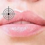 Простуда на губах — народные средства лечения
