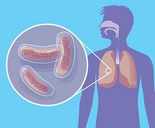Методы лечения туберкулеза