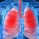 Как определить воспаление легких в домашних условиях?