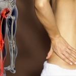 Признаки воспаления седалищного нерва