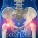 Кокс артроз — причины, симптомы и лечение