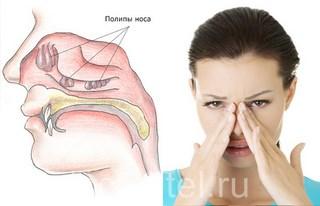 Полипы в области носа