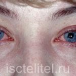 Заболевание конъюнктивит