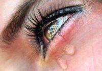 Очень сильно слезятся глаза
