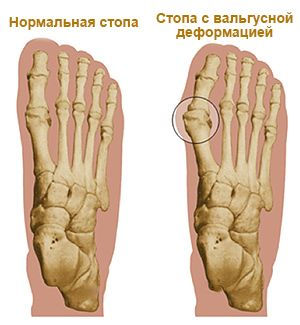 Шишка на ноге большого пальца