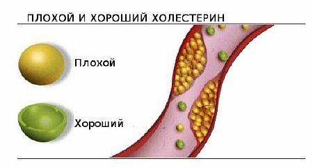 Причины повышения холестерина в крови