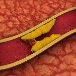Народные средства, эффективно понижающие холестерин