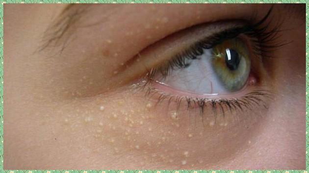 Атеромы под глазами