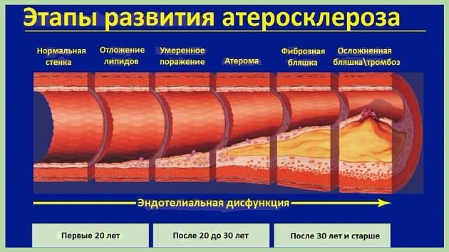 Стадии развития атеросклероза