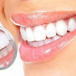Как помочь зубам: советы для идеальной улыбки