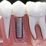 Почему мы должны заменять отсутствующие зубы